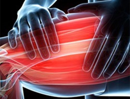 DOMS – What is it? How does it occur? How can we treat it?